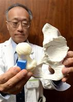 3D使い患者ごとに実物大の骨モデルを作成